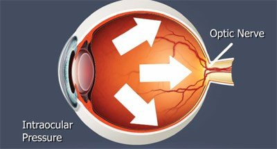 Glaucoma Information