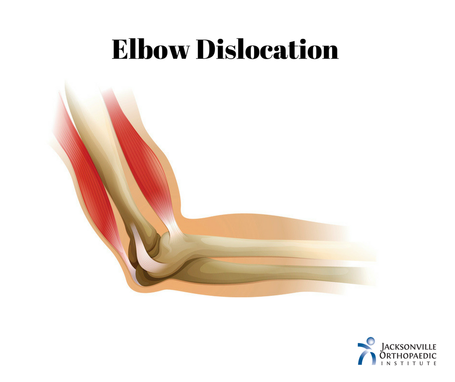 Elbow Dislocation