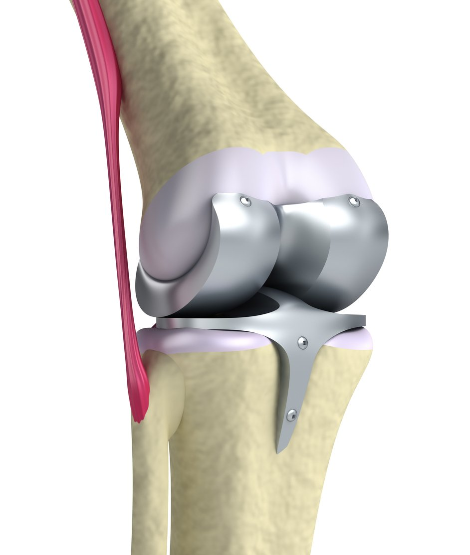 What To Expect After Having a Total Knee Replacement