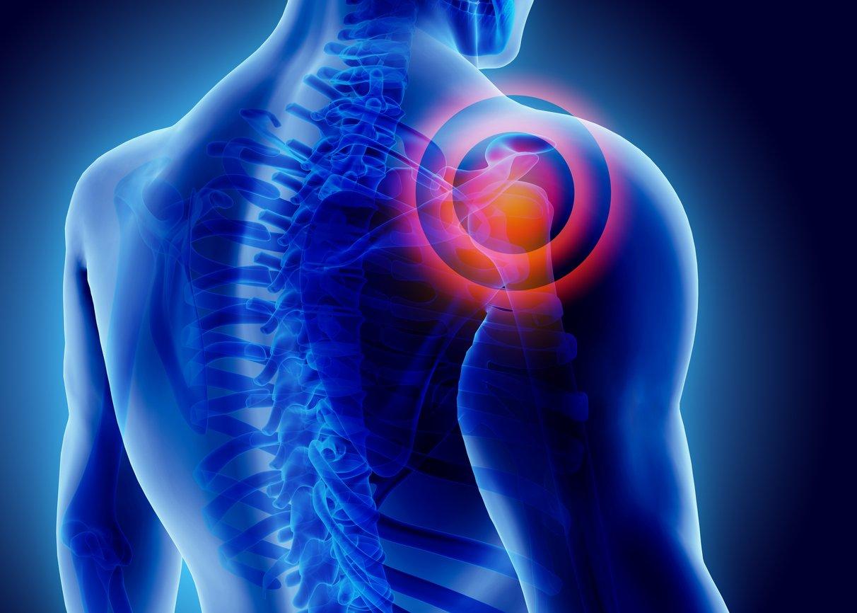5 shoulder symptoms you should not ignore