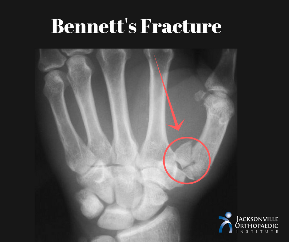 Bennett\'s Fracture: Break At The Base of Your Thumb