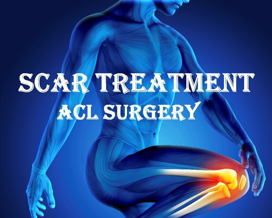 What Is The Best Treatment For A Scar After ACL Surgery?