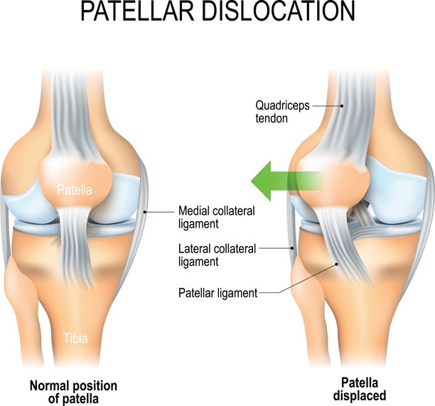 What Is The Recovery Time For A Dislocated Patella