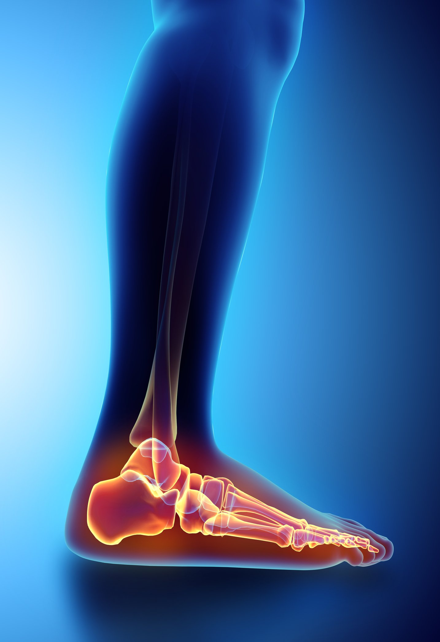 Plantar Fasciitis or Inflammation of the Plantar Fascia
