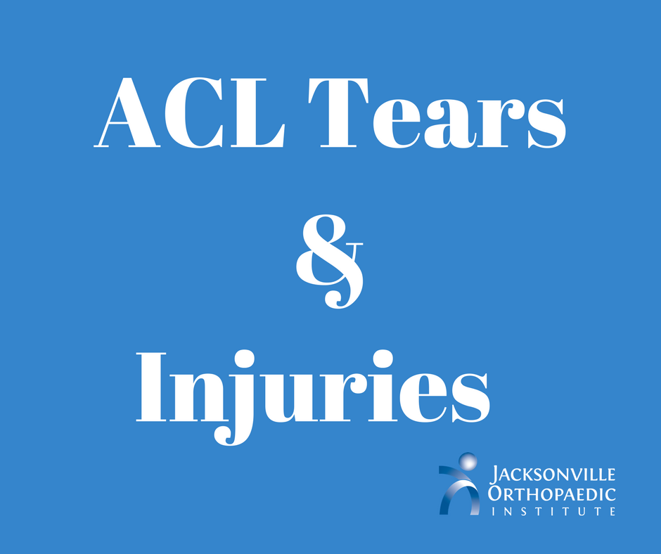 ACL tears by JOI
