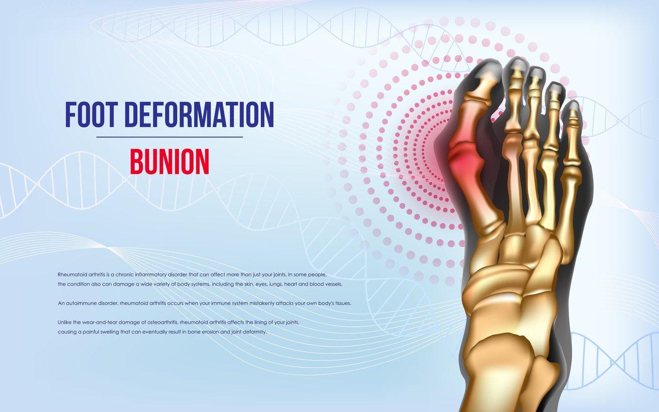 Bunion Formation