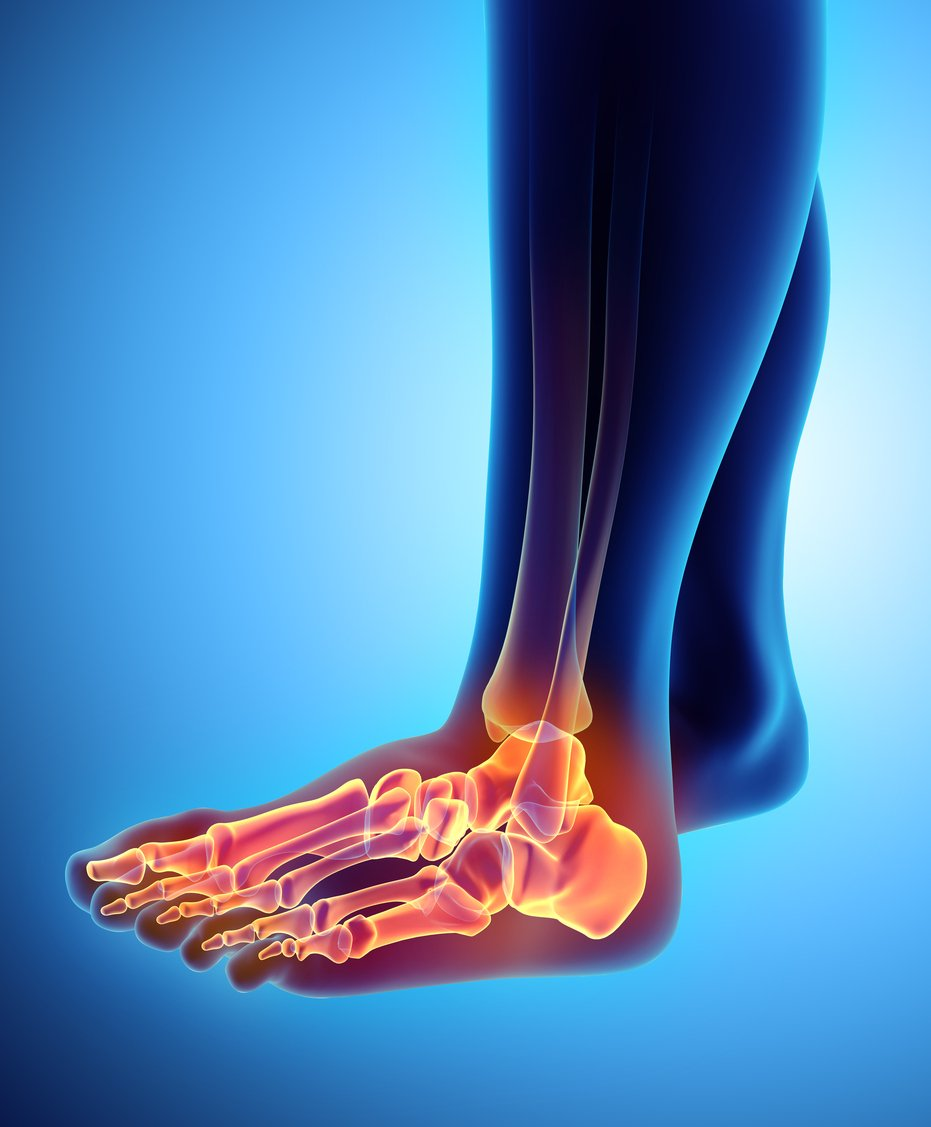 Do I Have a Broken or Sprained Ankle?