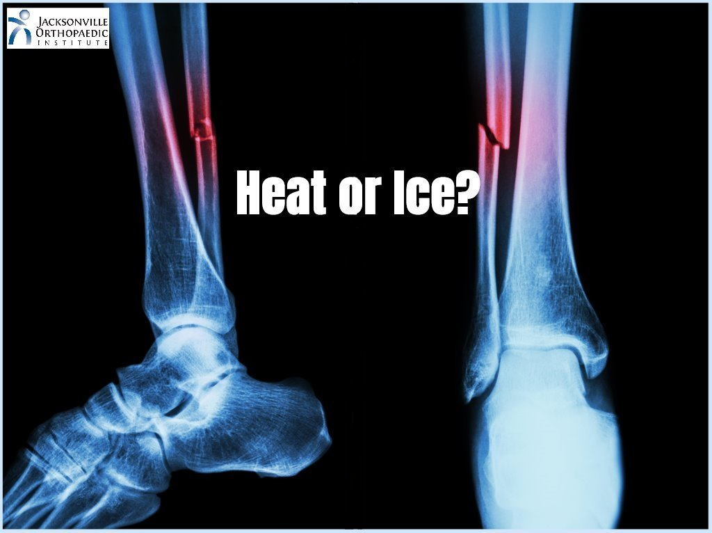 Picture of an X-ray of a lower leg fracture with the text 'Heat or Ice?'. JOI logo